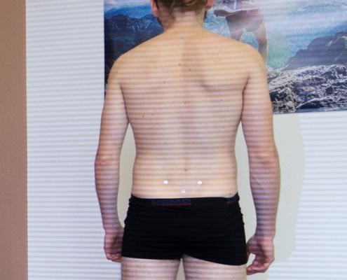 Bild 4D WIrbesläulenvermessung Dr. Alfred Spieker Orthopädie Vitalhaus Achern